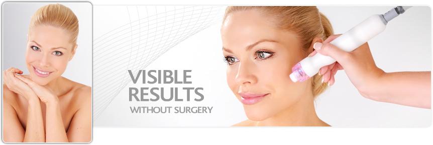 Non surgical facial treatments